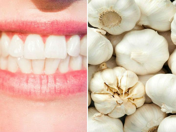 Ese remedio natural logrará aliviar el dolor de dientes