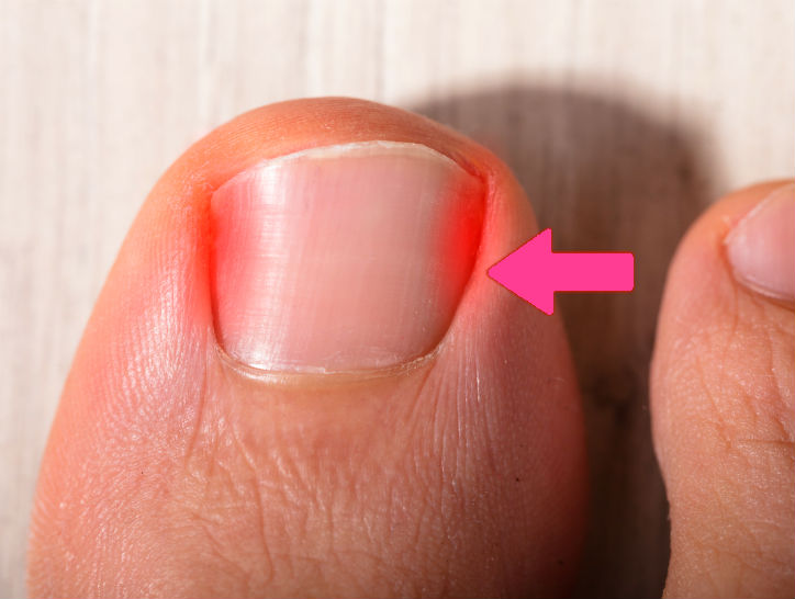 remedio para uñas encarnadas