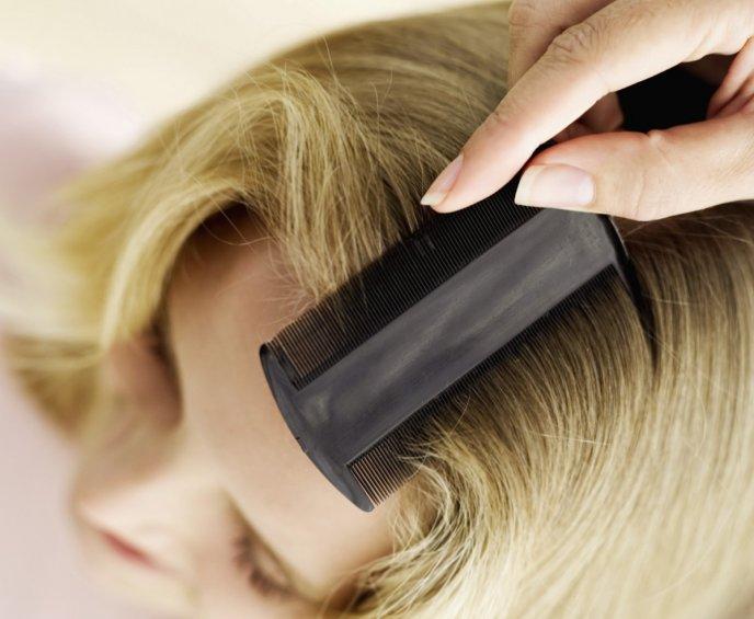 como buscar piojos en el pelo