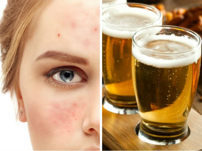 exceso de levadura de cerveza sintomas