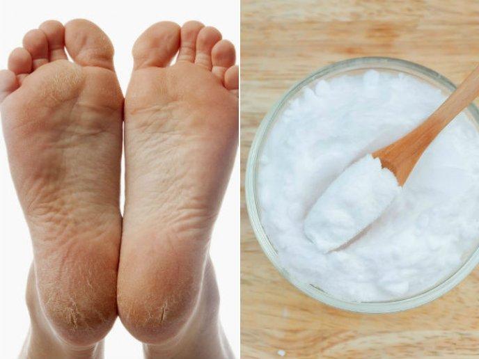 Remedio casero para quitar las grietas de los pies