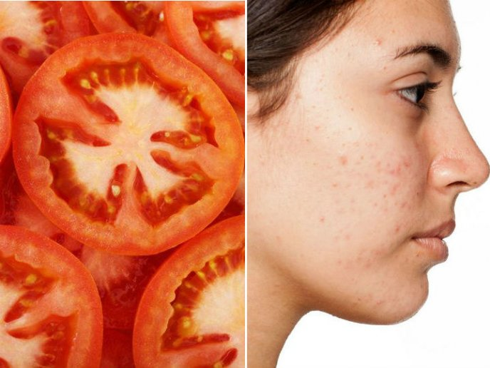Mejores tratamientos naturales para el acne