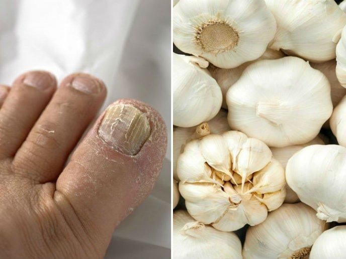 Medicina natural para los hongos delas unas delos pies