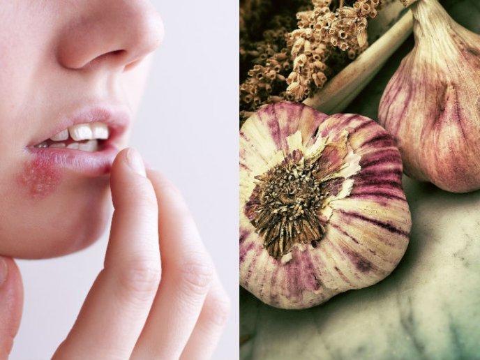 herpes lingual remedios caseros plata de dientes