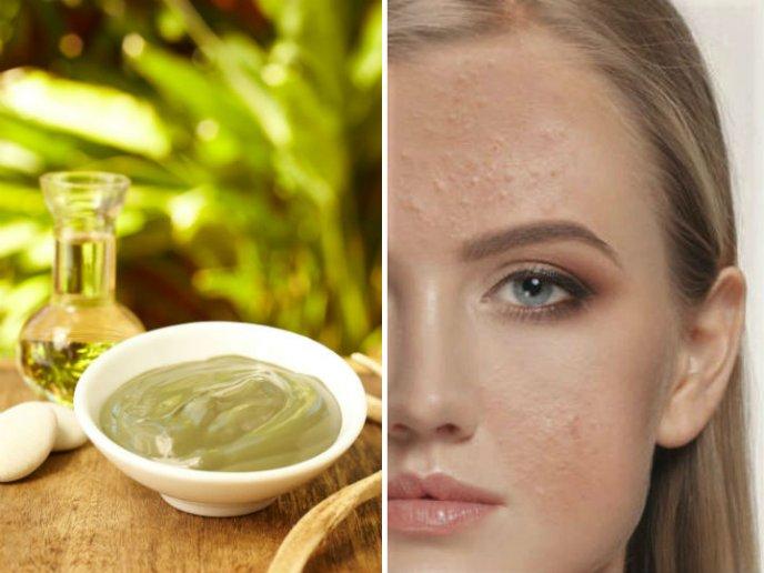 como quitar los granos de la piel grasa