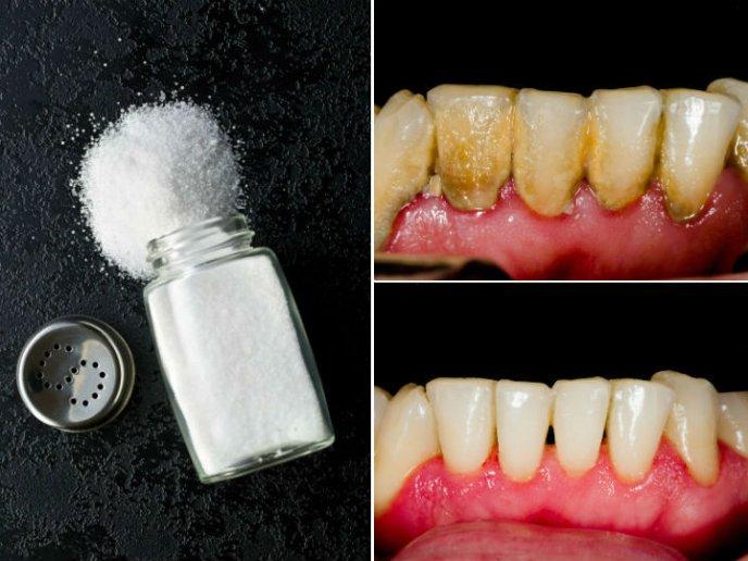 agua oxigenada sal y bicarbonato
