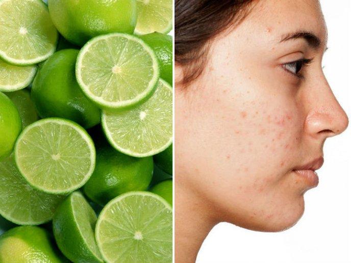 como hacer desaparecer el acne para siempre