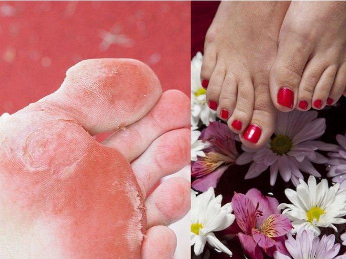 Remedios para el pie de atleta con vinagre