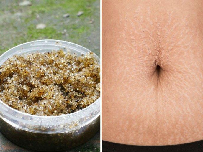 Remedios caseros para eliminar la celulitis en el abdomen
