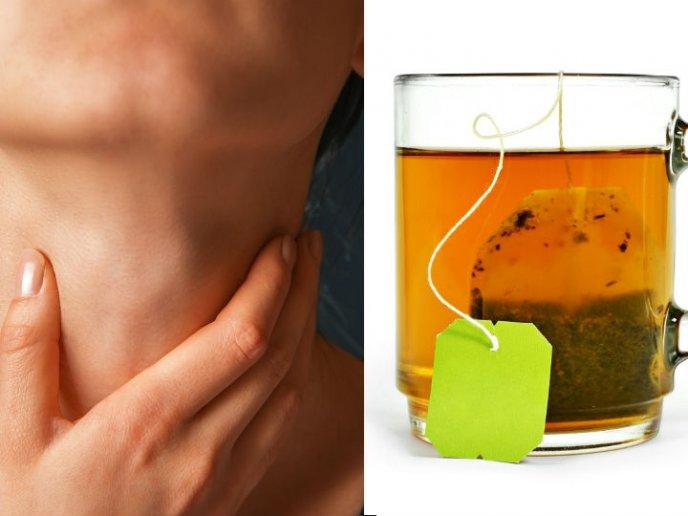 medicinas para adelgazar naturales infesiones