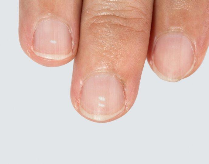 qué significan los puntos blancos en las uñas