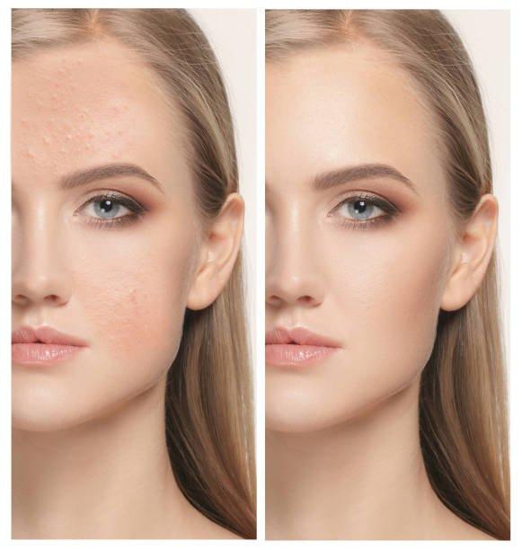 remedios caseros para eliminar granitos de grasa en la cara