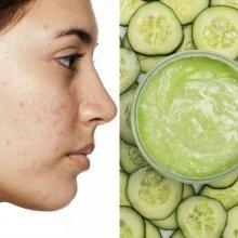 como quitar cicatrices de acne de forma natural